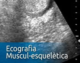 Ecografia Muscul-esquelètica