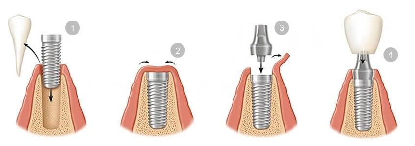 ¿Límite de edad para la implantología?