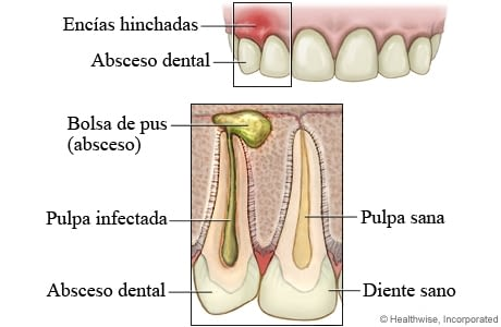 ¿Qué es una Cirugía Periapical?