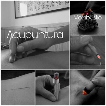 Acupuntura - 1