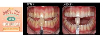 10% Dto. Blanqueamientos Dentales