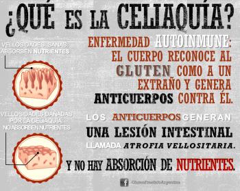 ¿Cómo prevenir los efectos de la celiaquía en la salud bucodental?