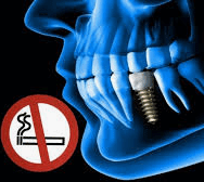 ¿Cómo influye el tabaco en los implantes dentales?